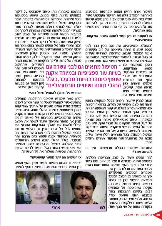 טיפולי אנטיאייג'ינג ודיקור קוסמטי בראיון שפורסם במגזין הברנז'ה חלק 2